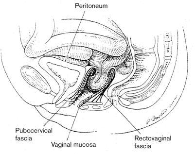 egeskov rabat uterin prolaps smerter